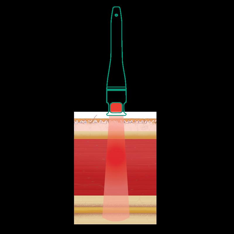 vysokoinentívny laser