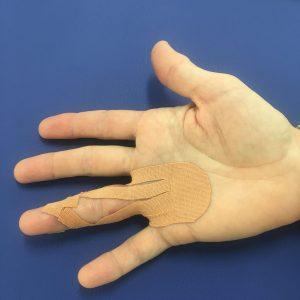 tejpovanie prsta